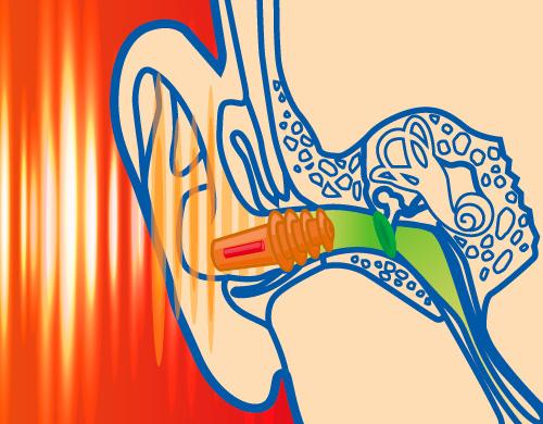 SANOHRA music  Ohrstöpsel dämmt laute Musik oder Lärm