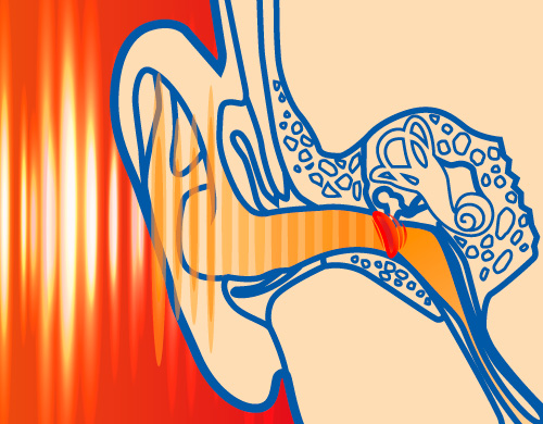 Ohne SANOHRA max Ohrstöpsel - die Lärmbelastung dringt ungehindert bis zu unserem Ohr vor